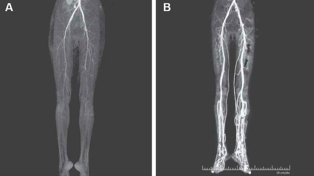 Hình ảnh chân bệnh nhân nữ trước và sau khi được truyền chất làm loãng máu.
