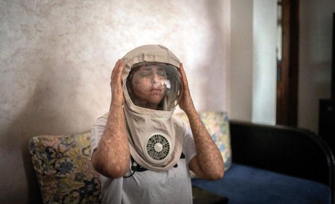 Fatima luôn phải đội chiếc mũ đặc biệt để bảo vệ da mỗi khi ra ngoài.