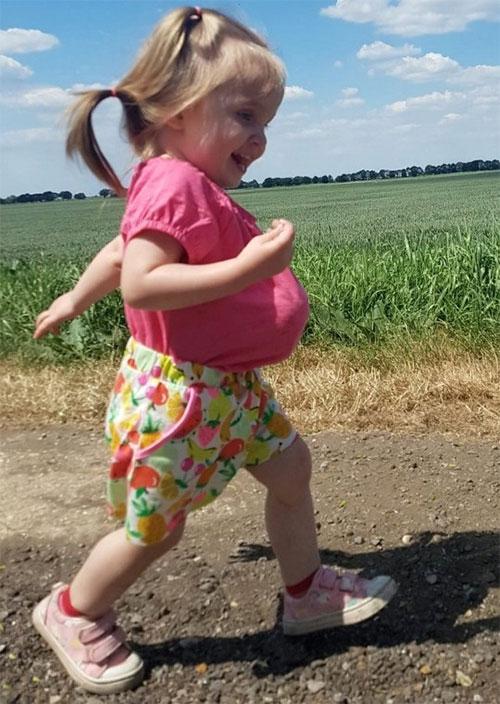 Bé gái sinh ra có nội tạng bên ngoài cơ thể chạy vui chơi cùng gia đình.