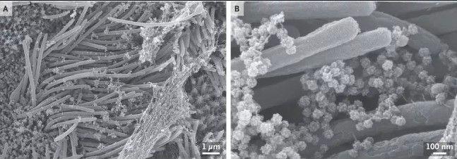 Hình chụp dưới kính hiển vi tế bào đường thở chứa đầy virus SARS-CoV-2.
