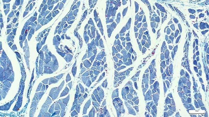 Các nhánh như bông tuyết này có liên quan đến nguy cơ mắc các bệnh tim mạch.
