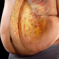 Tác hại của mỡ nội tạng với sức khỏe