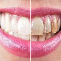 Vì sao răng bị ố vàng?