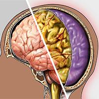 Bệnh viêm màng não cấp nguy hiểm thế nào?