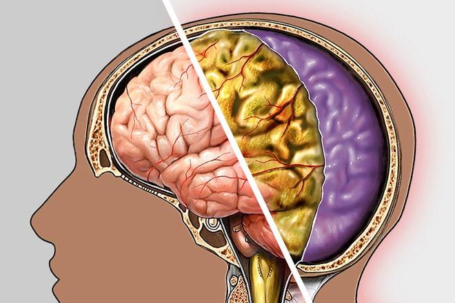 Viêm màng não cấp là cân bệnh nguy hiểm nếu không được phát hiện sớm