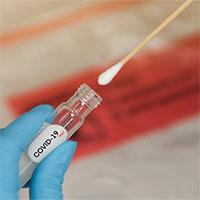 Mỹ cấp phép dụng cụ tự xét nghiệm Covid-19 trong 30 phút
