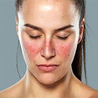 Lupus ban đỏ và vảy nến khác nhau như thế nào?