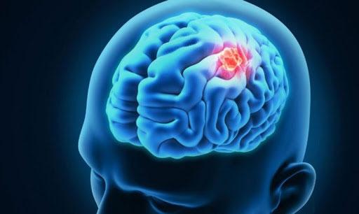 Nhiều triệu chứng tiềm tàng của khối u não.