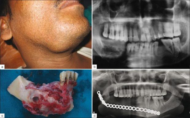 U men răng cũng thường xảy ra ở đối tượng nam giới nhiều hơn.