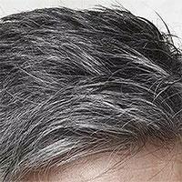 """Phát hiện nguyên nhân """"tại sao căng thẳng lại khiến tóc bạc"""""""