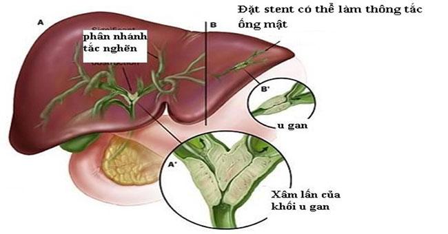 Ung thư ống mật