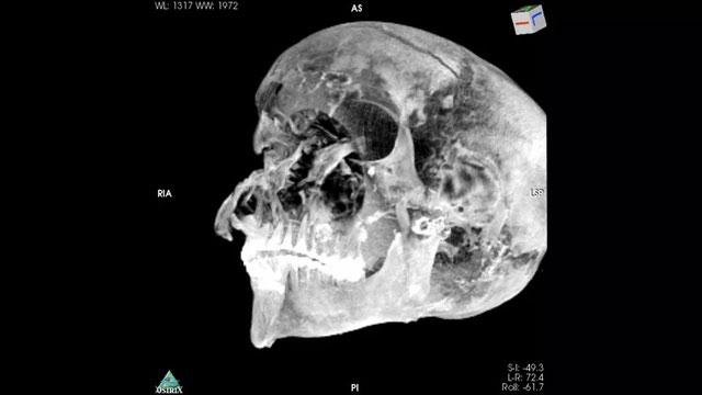 Hình ảnh chụp CT hộp sọ của pharaoh Seqenenre Taa I