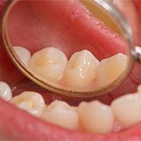 Dấu hiệu cảnh báo ung thư khoang miệng