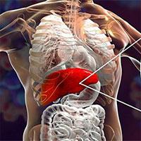 Bệnh viêm gan siêu vi B là gì?