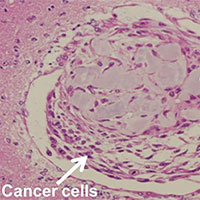 Nghiên cứu mới: Biến tế bào ung thư thành tế bào gốc, giúp chế thuốc chữa bệnh