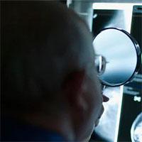Các nhà nghiên cứu đã tìm ra cơ hội chặn ung thư vú