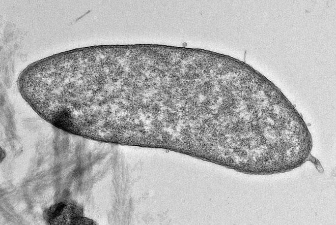 Con vi khuẩn với khả năng khử độc phụ phẩm sinh ra trong quá trình khai thác đồng.