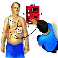 Máy khử rung tim ngoài là gì?